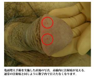 ペニス増大手術_亀頭増大法