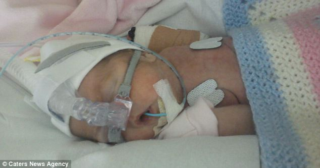 Mia Rose was in hospital for three months