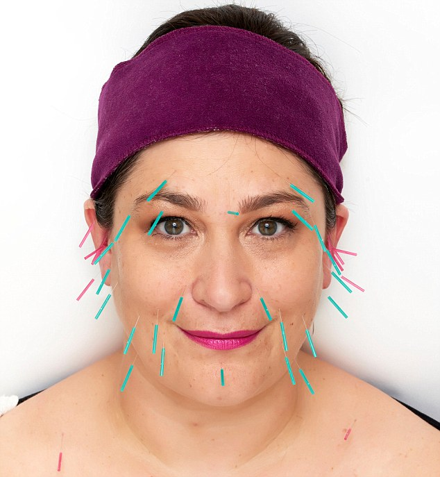 Sarah Vine (above) turned to the ancient art of facial acupuncture to give her tired skin a boost