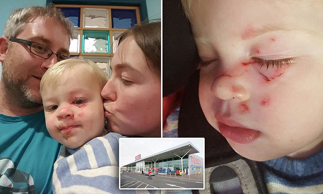 Clacton toddler was attacked in the face by man in Tesco