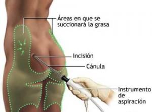 tecnica-liposuccion-madrid