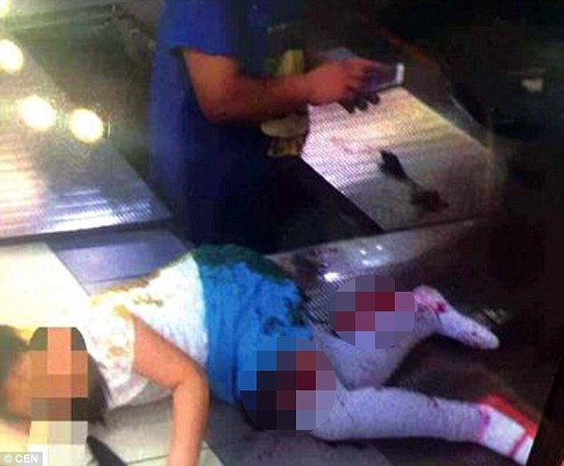 Horrifying injuries: The girl sustained a 10 inch cut to her thigh which doctors say almost hit the bone