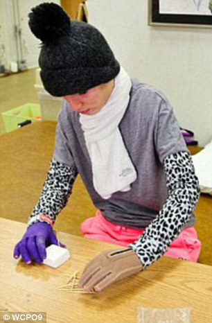 After four operations, skin grafts on her hands, and two months of physiotherapy, Kilee returned to Ripley-Union-Lewis-Huntington High School, where she was an honor student