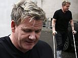 Mandatory Credit: Photo by Beretta/Sims/REX/Shutterstock (5738507c) Gordon Ramsey on crutches Gordon Ramsay out and about, London, UK - 29 Jun 2016