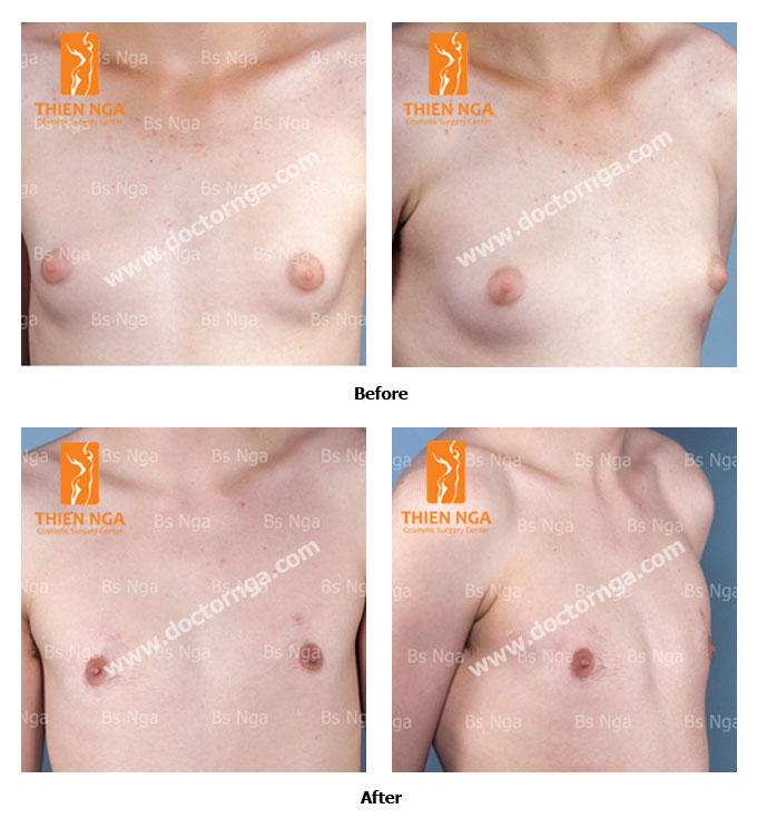 breast reduction for men 3