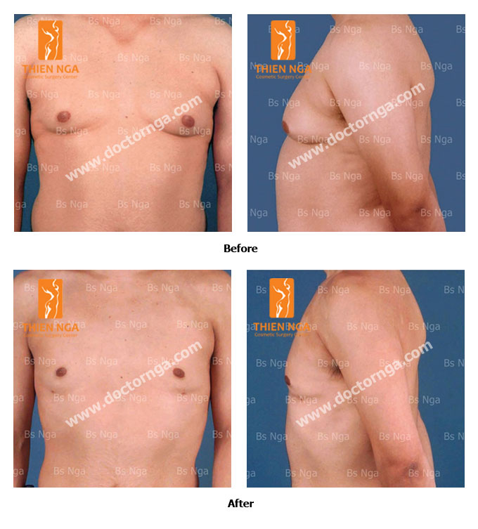 breast reduction for men 1