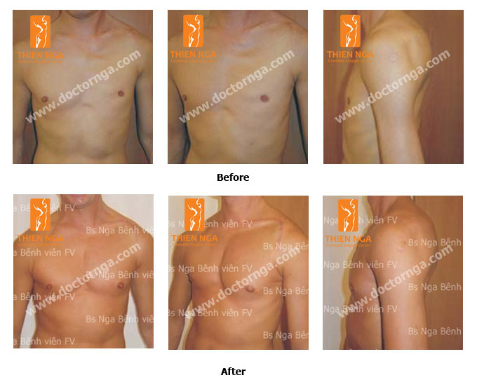 breast augmentation for men