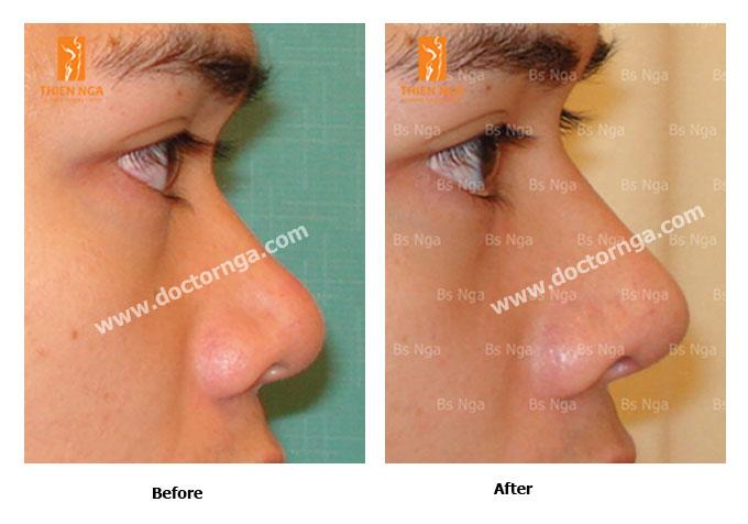 nasal augmentation