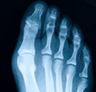Could a big toe op end YOUR arthritis misery?