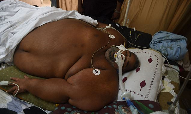 Doctors baffled after vegetable salesman named Jabbar balloons to 42½ STONE in Pakistan