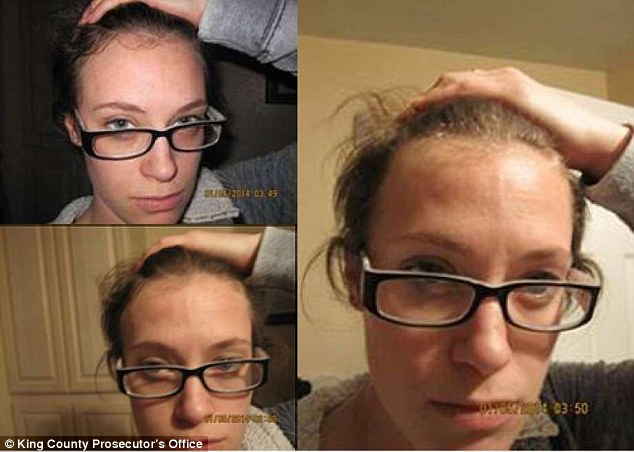 In her petition for a protective order, Hargrove shared pictures of the abuse she said Cushman inflicted on her (above)
