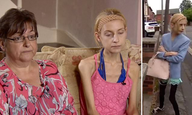 Anorexic Stockport teen whose organs are failing is checked into clinic as 'last hope'