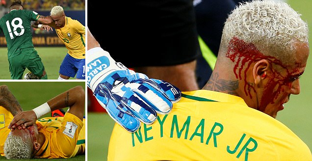 Brazil 5-0 Bolivia: Philippe Coutinho and Roberto Firmino score as Neymar suffers bloodied