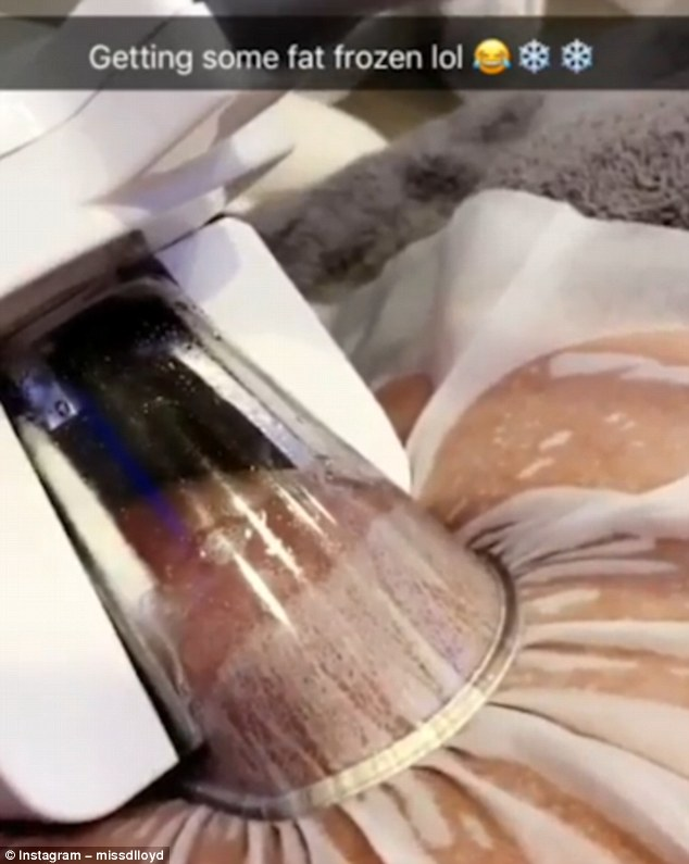 The mother-of-three shared the video, which sees her fat being sucked, with the caption: 'Getting some fat frozen. Cool as ice #fatfreeze @macaesthetics'