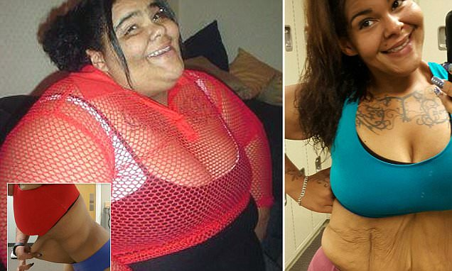 Woman who lost 20 STONE asks strangers to help pay for excess skin removal surgery