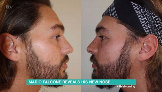 Post-op: Mario appeared on This Morning to discuss the results of his recent nose job... and revealed there were Twitter accounts set up dedicated to his nose