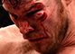 Bisping survives battering to retain his UFC title
