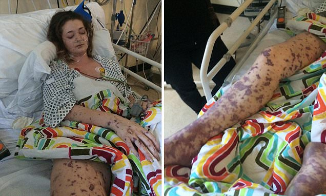 Charlene Colechin shares pictures showing how meningitis ravaged her body