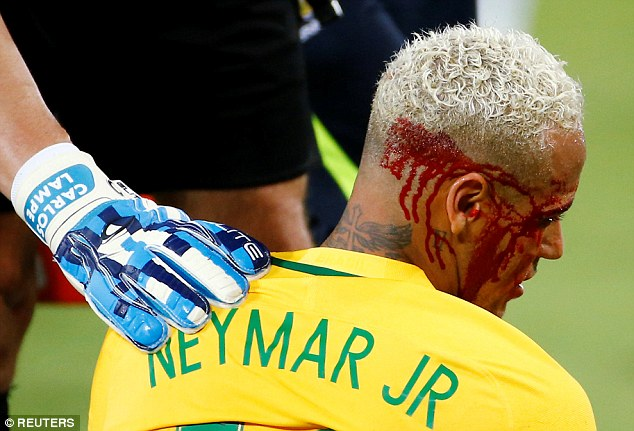 The Brazilian represented his country on Thursday, suffering a cut above his right eye