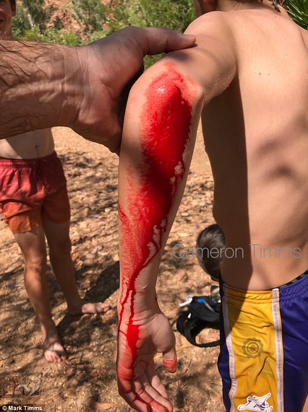 Cameron was left with blood gushing down his left arm after the frightening attack by the croc