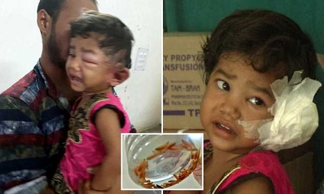 Indian child has 80 maggots removed from her ear after complaining of itch