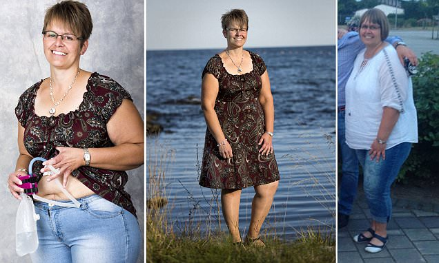 It helped Carola lose eight stone, but is this bizarre weight loss op a step too far?