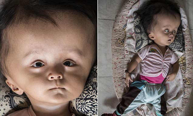 Family of baby whose head has swelled to twice its normal size has sold 'everything they