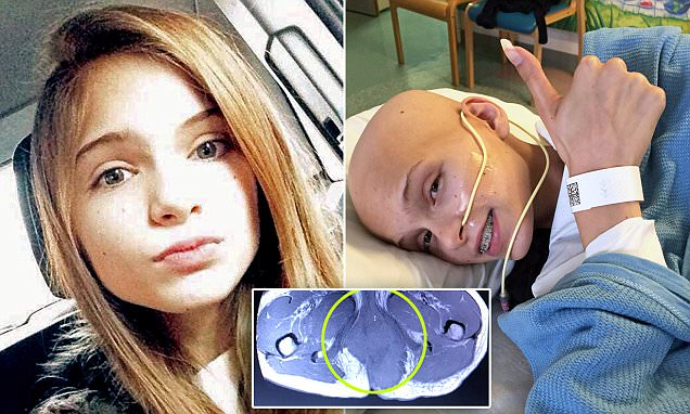Teen who thought she had pulled a muscle discovers pain was actually a tumour in her bum