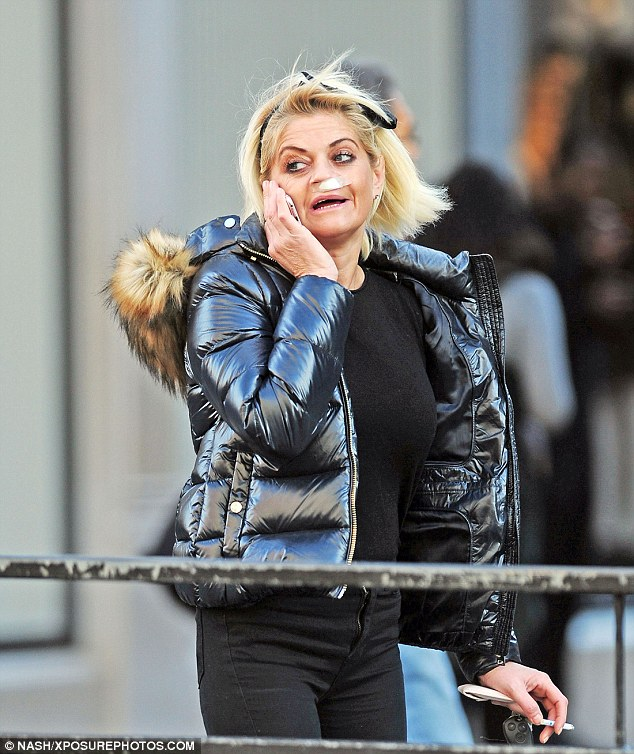 Shock: The former EastEnders star was seen out in London this weekend sporting the mystery bandage