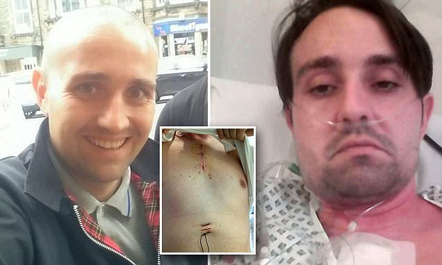 Man almost died and needed open-heart surgery after TOOTHACHE was source of  deadly