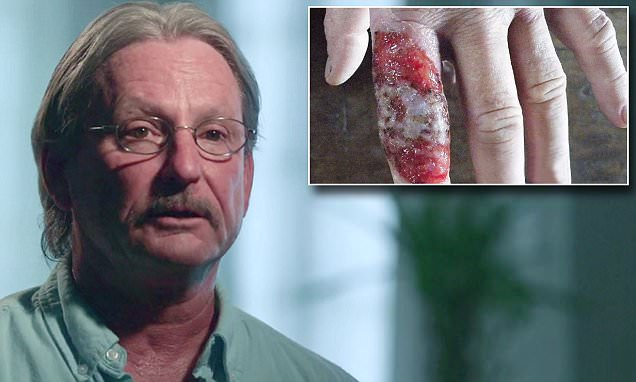 Man describes seeing flesh-eating parasite ravaging his own skin