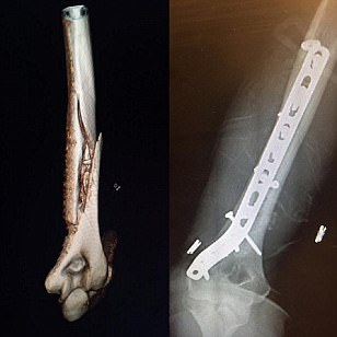 Lindsey Vonn posts pictures of horrific arm break on Facebook after undergoing surgery