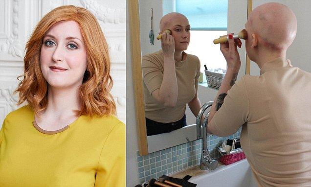 Woman with alopecia who has been single for FIVE YEARS fears she will never find love and