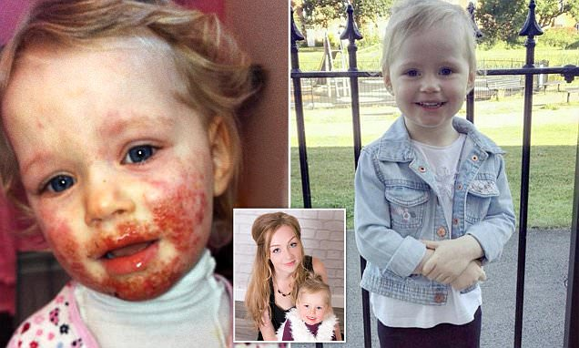 Girl 'eaten alive' by herpes that she caught from kissing a family member has recovered