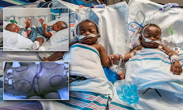 Conjoined twin girls from Nigeria separated at US hospital days before their 1st birthday