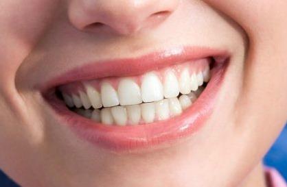 hình ảnh cho thấy người phụ nữ có răng và lợi khỏe mạnh