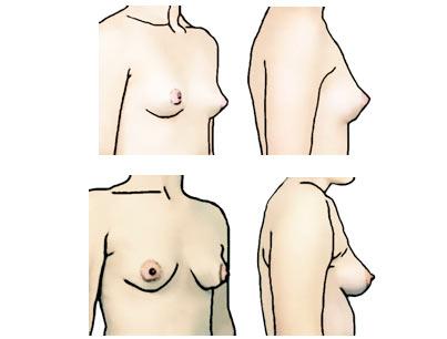 Konischeform der Brust