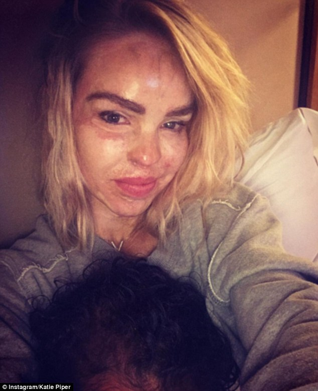 Survivor:Acid-attack survivor Katie Piper has condemned the new trend of using make-up trickery to create realistic cuts and scars for Halloween fancy dress