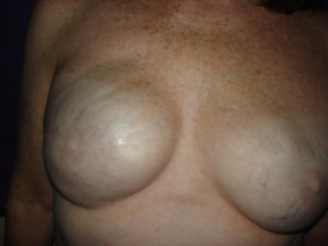 Areola Restoration for a Breast Cancer survivor that choose reconstructive surgery. Before