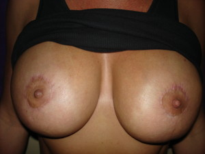 Client 1 Before Areola Restoration