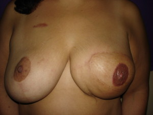 Areola Restoration Left breast right after.