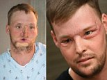 Staggering transformation: Face transplant recipient Andy Sandness attends a speech therapy appointment at the Mayo Clinic in Rochester, Minnesota on January 27 - seven months after his face transplant operation was hailed a success