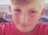 Cameron Chadwick, 15, tragically died on February 7 after his moped collided with a lamppost