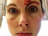 Kelly Herron, 36, used self-defense  to fend off a brutal assault from Gary Steiner, a registered homeless sex offender, at Golden Gardens Park's public restroom in Seattle on Sunday