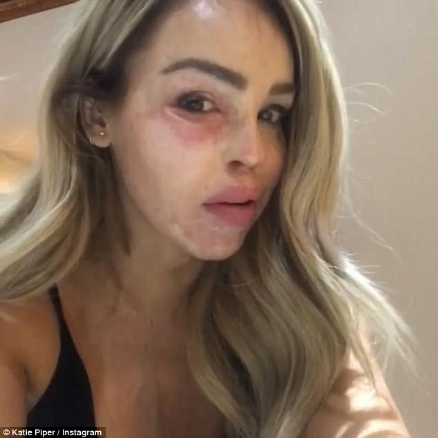 Aches:Katie Piper was rushed to an urgent care unit on her daughter Belle's third birthday after contracting a serious eye infection