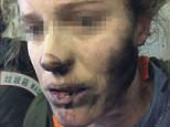 A woman who was travelling to Melbourne has received burns to her face after the pair of battery-operated headphones she was wearing exploded mid-flight (pictured)