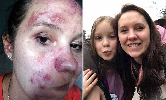 Woman with rosacea cures it with a cream made from CAPERS