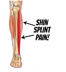 how to heal shin splints