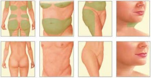 areas-liposuccion-madrid