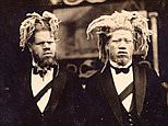 George and Willie Muse had been born albinos and were known as the Sheep-Headed Cannibals